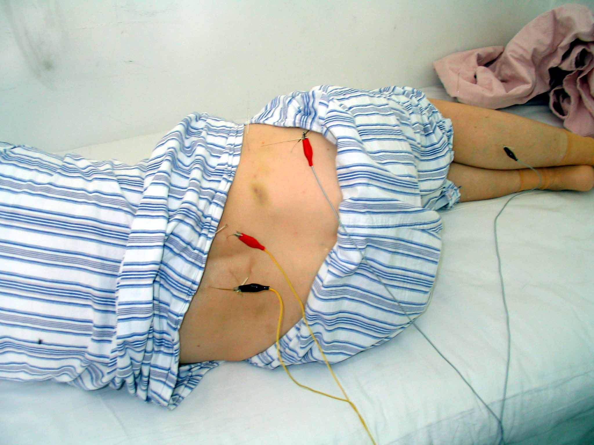 accupuncture for back pain New advice represents a u-turn in treatment for back pain, which affects one in 10  people, after evidence review showed acupuncture no better.